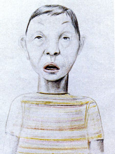 Baryta Carbonica - child
